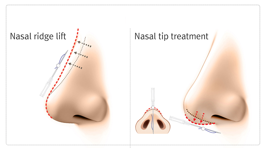 La Clinic Nose Threadlift